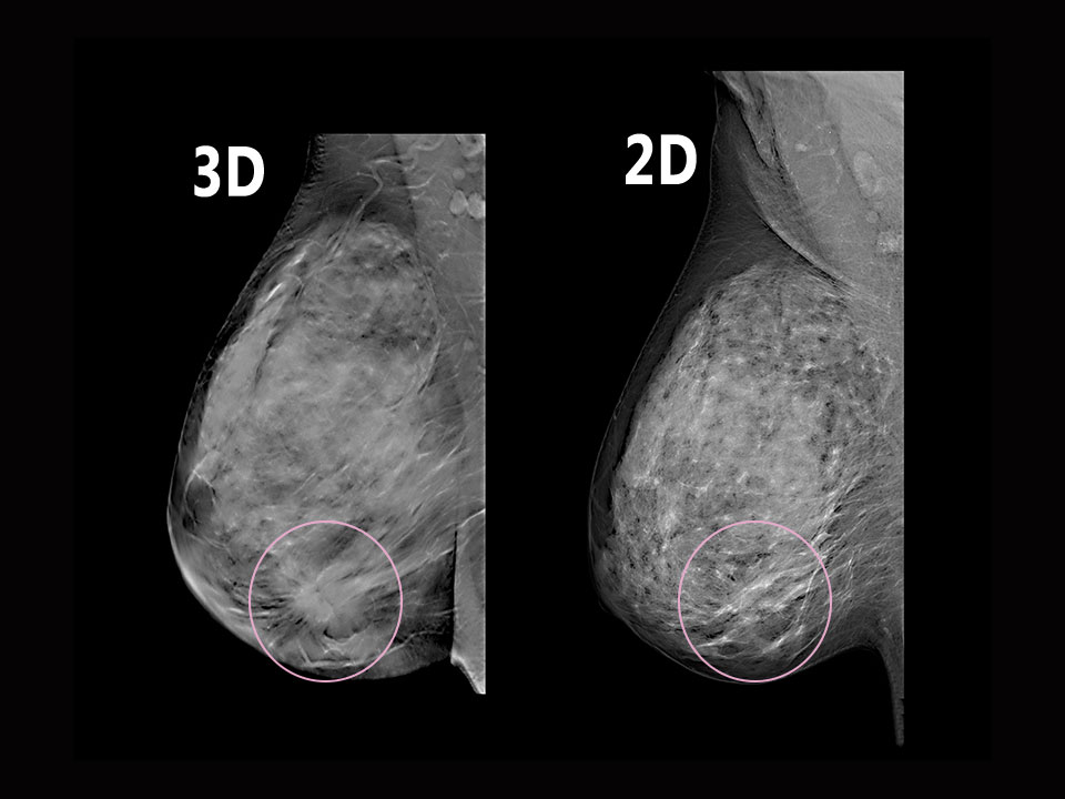 2D Vs. 3D Mammography