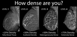 breast-density-4-levels